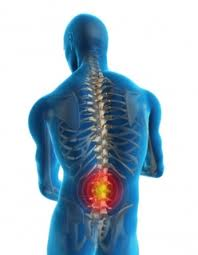 Herniated-Disc-In-Back-1